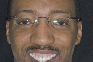 Eric Gummy Smile F2 B4 2703