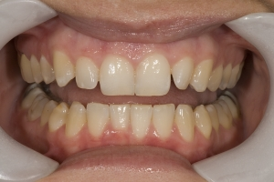Briana Gummy Smile R B4 008