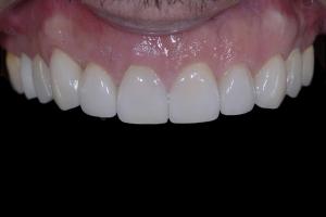 Otto Gummy SmileX121 Post 1244