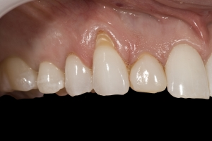 Kate Gum Graft X CTG B4 0056