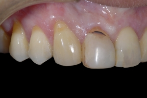 Maria Gum Graft X121a Before 0195
