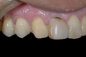 Maria Gum Graft X121b After 1474