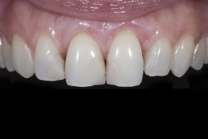 Rossana Gum Graft X121 B4_2KL17942 copy