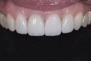 Rossana Gum Graft X121 Post 3971 copy