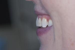 Kirsten Braces Extrusion XF Profile B49509