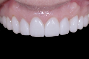 Susan Braces Extrusion X4 1581