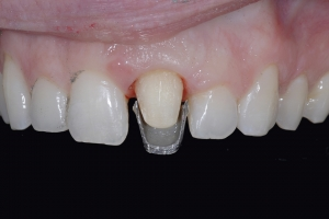 Chelli Z9 Grey Tooth Crown Before 7321