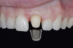 Chelli Z9a Grey Tooth Crown Before 7325 1