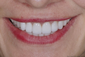 Susan S After Full Mouth 2750