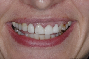 Susan S  Before Full Mouth 2125