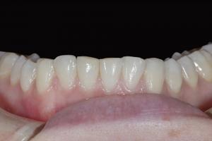 Aerial Teeth Whitening X121L B4 8253