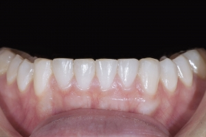 Aerial Teeth Whitening X121L post  8589 2