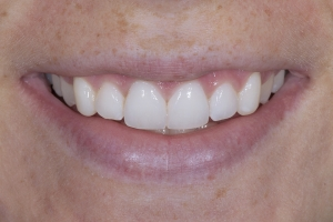 Aerial Teeth Whitening S Post _4KL8584
