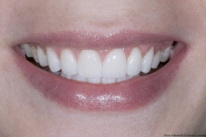 Aimee Veneers S Post 4524