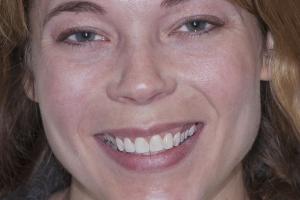 Aimee Veneers F B4 2