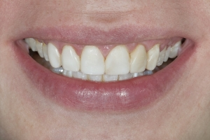 Aimee Veneers S  Before 9404