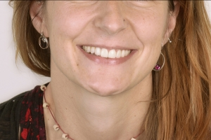 Ain F Crowns Back Teeth After 6598 copy