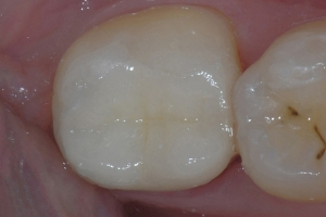 Ain X Crowns Back Teeth After 9577