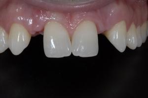 Alex Implant Temporary X ITemp B4 0461