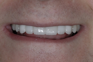 Alex S Zirconium Bridge After 0228