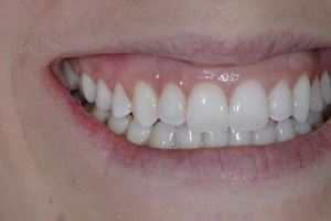 Alexis S Crowns Back Teeth After 1328