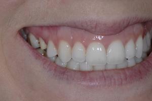 Alexis S Crowns Back Teeth  Before 1321