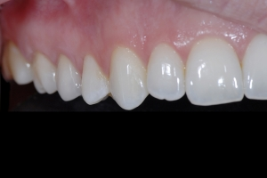 Alexis X121 Crowns Back Teeth After 1326