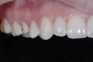 Alexis X121 Crowns Back Teeth  Before 1323