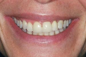 Allison Gum Leveliing S B4 2 Veneers + No Gum leveling2