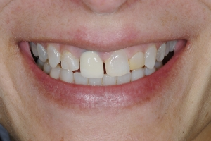 Ana S Grey Tooth Crown  Before 6559
