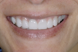 Ana Veneers & Whitening S Post 7045