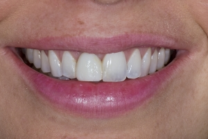 Andrea Implant Crown S B4 2260