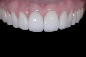 Andrea Implant Crown XX 9  2248
