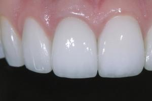 Andrea Implant Crown Xx 8 2248