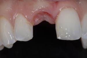 Andrea Implant Crown Xx 7b