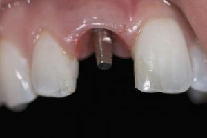 Andrea Implant Crown Xx 7c