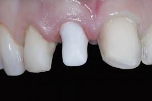 Andrea Implant Crown Xx 7d