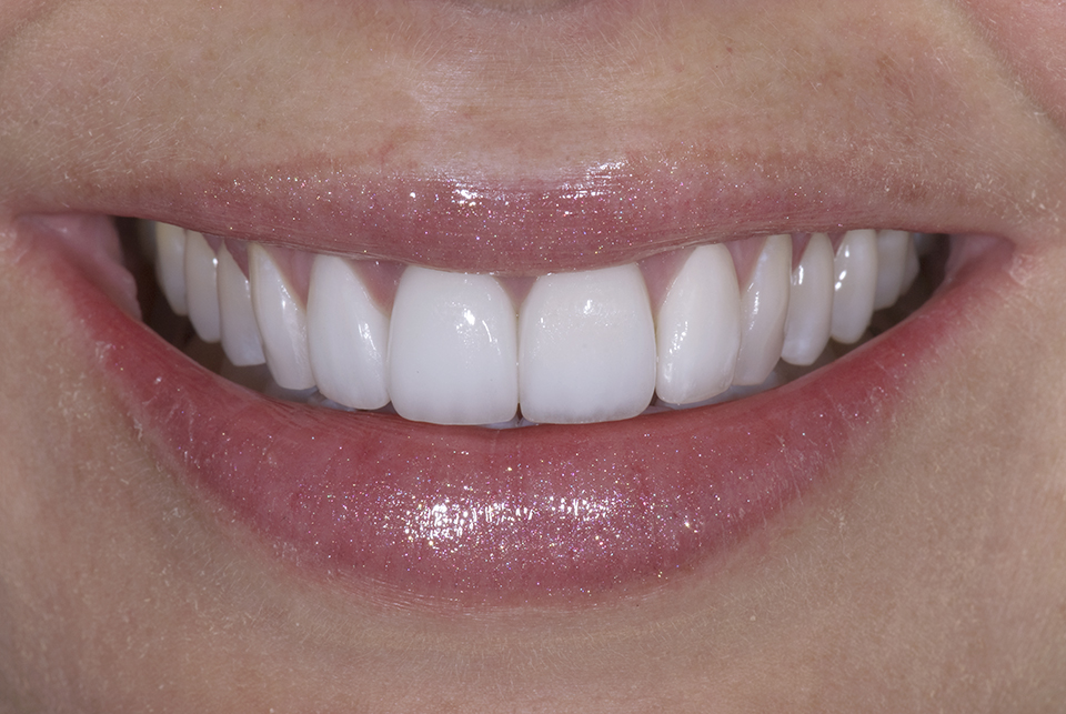 Bone Graft After Extraction Advanced Cosmetic Dentistry