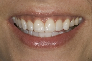 Angela 2 S Diastema After 0035