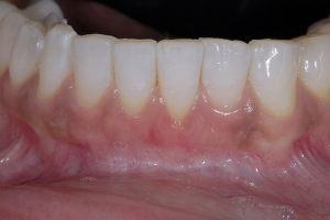 Angela Frenectomy Papillae X1 After 4638