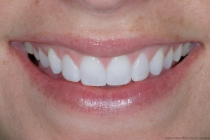 Angela Veneers S Post 6 2013 2