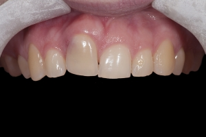Angie Implant Temporary X itemp1 0081