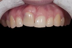 Angie Implant Temporary X itemp1 0081