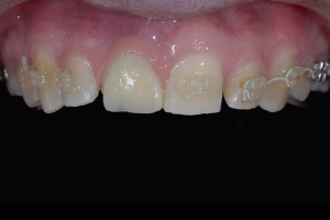 Angie Implant Temporary X itemp5b 5904