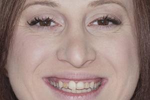 Ann Gummy Smile F2 b4 9020
