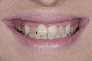 Ann Gummy Smile S B4 9009