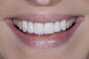 Ann Gummy Smile S Post 5332
