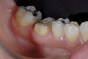 Anna2 Crowns Back Teeth X121  Before PFM 1874