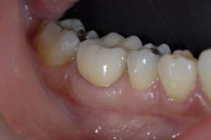 Anna2 Crowns Back Teeth X121 After PFM 1884