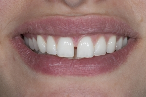Anna S Crowns Back Teeth After 7121